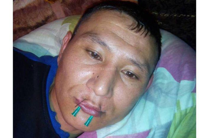В колонии №3 в с.Новопокровка осужденный зашил рот и объявил голодовку (фото)
