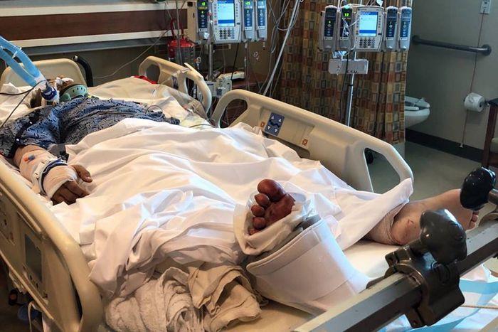 В США кыргызстанец в тяжелом состоянии находится в реанимации после ДТП <i>(фото)</i>